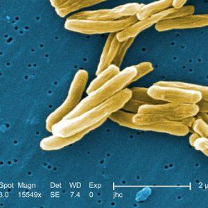 Instytut Gruźlicy Chorób Płuc opublikował raport o występowaniu gruźlicy...