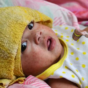 Rumunia walczy z epidemią odry. Z powodu choroby zmarło...